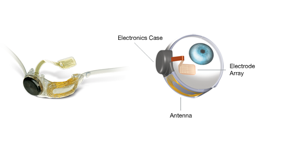 The Argus II artificial retina can restore a form of sight to patients with retinitis pigmentosa. Image courtesy of Second Sight Medical Products.